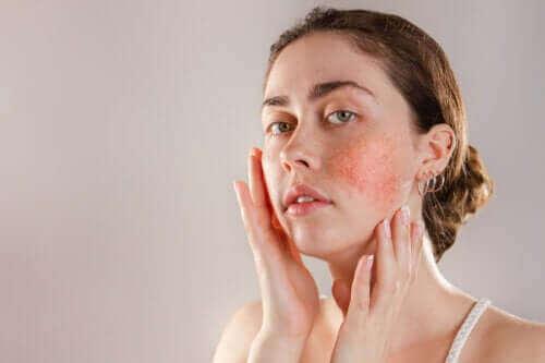 반응성 피부의 증상, 원인 및 치료