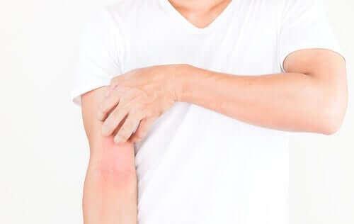 피부 발진: 증상, 원인 및 치료