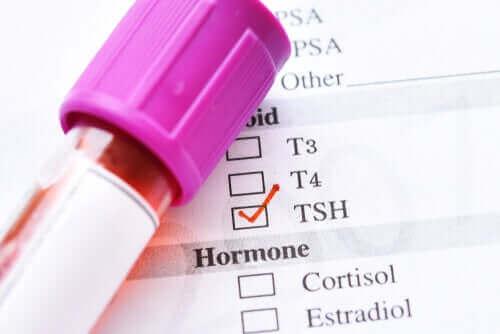 갑상선자극호르몬의 수치가 낮은 이유
