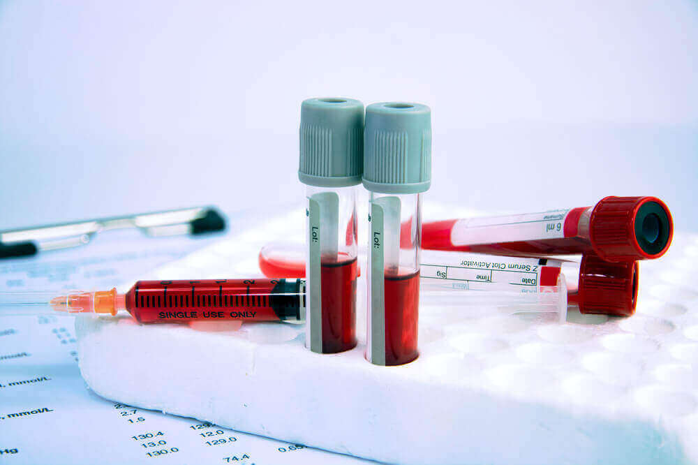 빈혈 확인하는 방법