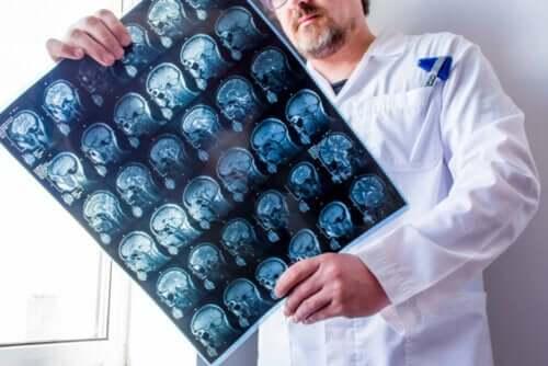 뇌전증의 유형에 관해 알아야 할 모든 것