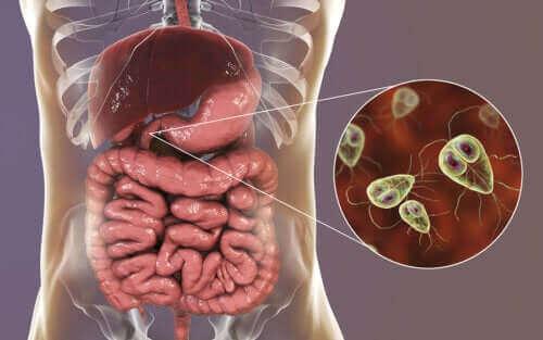 편모충증의 증상과 치료법