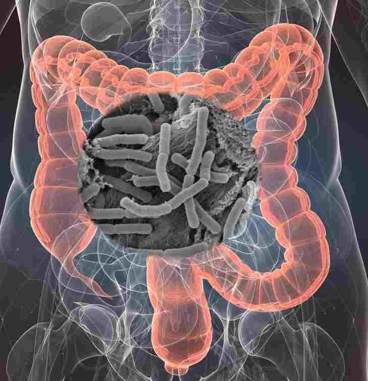 만성 질환에 적절한 영양 섭취: 식이 보조제