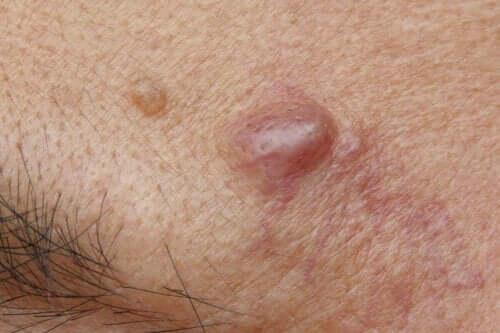 표피 낭종의 원인과 가능한 치료