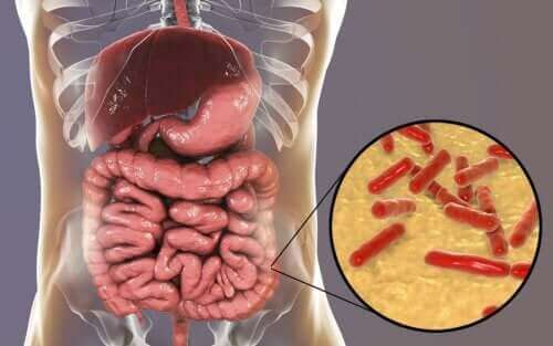 장내미생물군 손상을 알 수 있는 방법