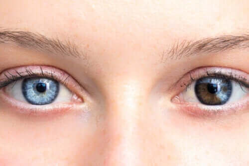 눈 색깔의 변화로 알 수 있는 건강 상태