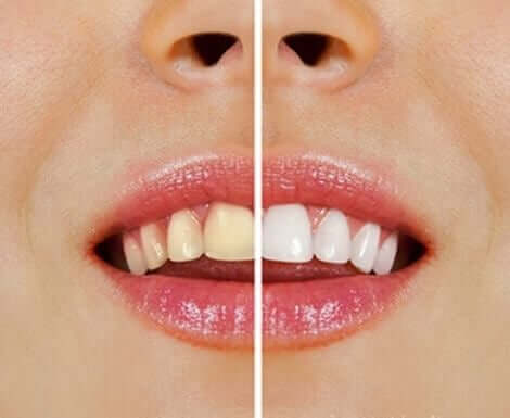 치아 미백을 위한 자연 요법