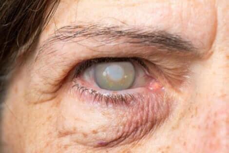 시력 상실의 원인과 증상