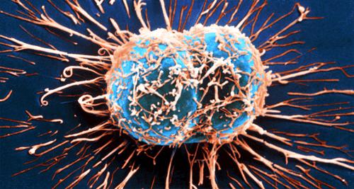 면역계가 암과 싸우는 방식