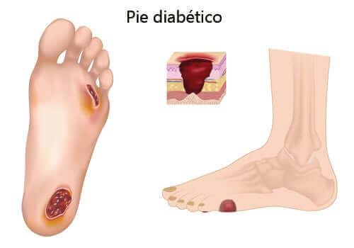 당뇨발은 무엇일까?