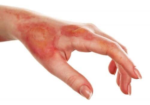 피부 괴사의 진단