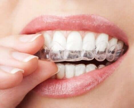 치아 미백 시술의 설명 및 유형