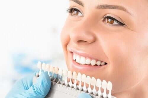 치아 미백 시술의 유형