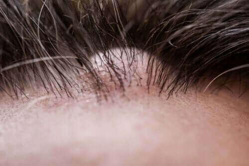 피부 섬유종의 증상과 치료법