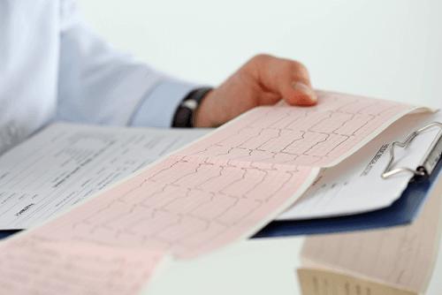 부정맥으로 인한 갑작스러운 사망 위험은 높다