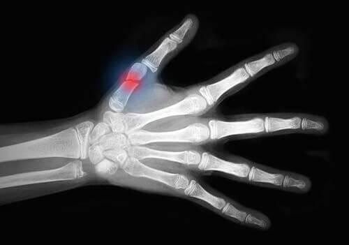 연조직 손상에 대한 췌르네 분류의 발전