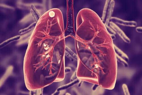 폐결핵은 무엇일까