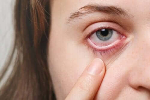 눈 감염에 효과적인 5가지 치료법