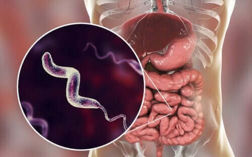 캄필로박터 감염의 특성