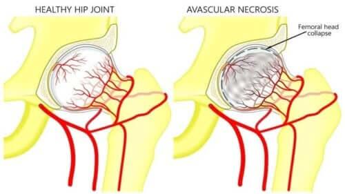 대퇴골두 무혈성 괴사의 증상 및 치료