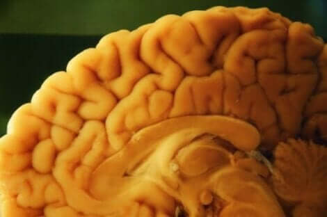 신경병적 부검 기술은 무엇일까