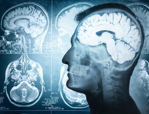 뇌 탈출증에 관하여