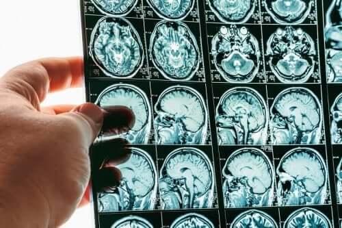 뇌 탈출증은 무엇일까