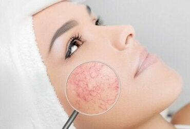 주사 피부염이 있을 때 피해야 할 6가지