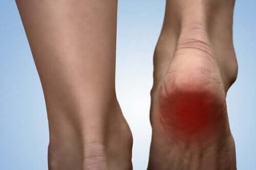 발뒤꿈치 통증 증후군을 위한 5가지 치료법