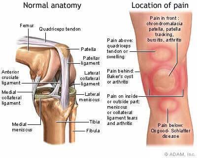슬개골 연골 연화증의 특성 및 치료