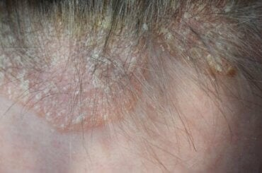 두피 건선의 증상 및 치료