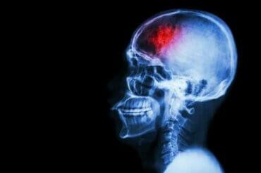 뇌졸중 예방 조치 7가지