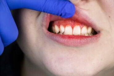 급성 괴사성 궤양성 치은염의 유래, 증상 및 치료