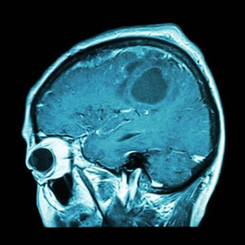 뇌종양 백신이 곧 나올 수 있을까