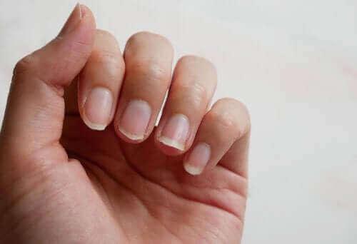 손톱을 자연적으로 강화하는 5가지 방법