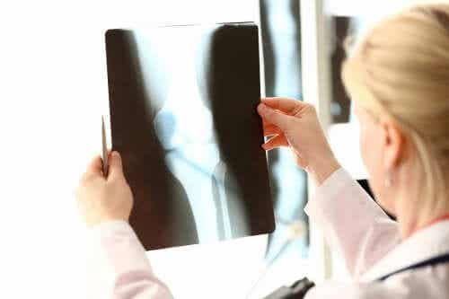 뼈 건강을 위한 칼슘 및 비타민 D가 풍부한 식품