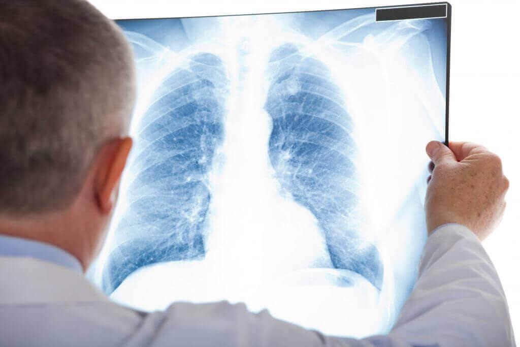 폐확장부전의 진단
