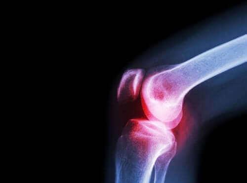 화농성 관절염의 원인, 증상 및 치료