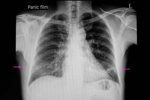 폐확장부전의 원인과 증상