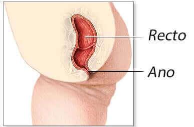 항문경 종양