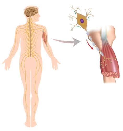 신경근 질환의