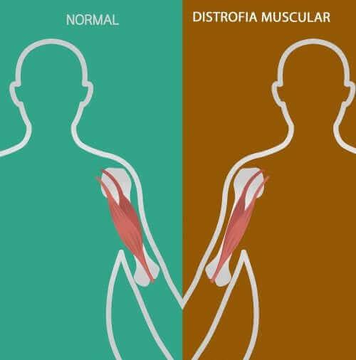 신경근 질환의 원인 및 증상