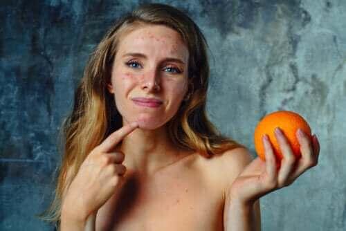 감귤류 과일 알레르기의 증상 및 치료법