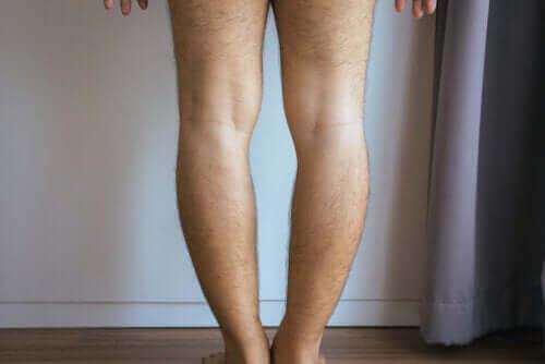 O자형 다리의 원인 및 치료