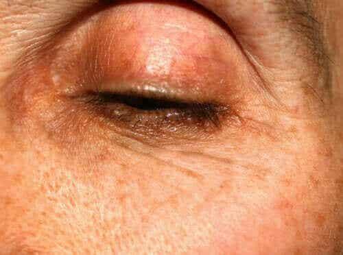 마이봄샘 기능 장애 원인 및 특징