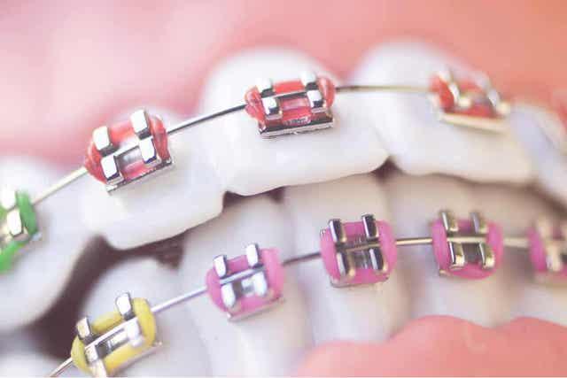 어린이 치과 교정에 대해 알아야 할 모든 점