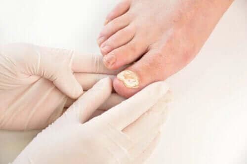 손발톱 곰팡이 감염을 예방하는 방법 7가지