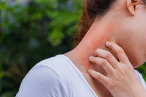 피부염과 코르티코스테로이드의 연관성