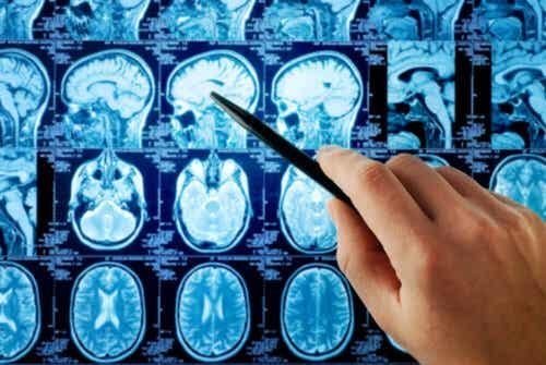 뇌 부위 섬엽