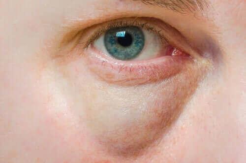 부은 눈꺼풀 증상의 원인과 치료 방법